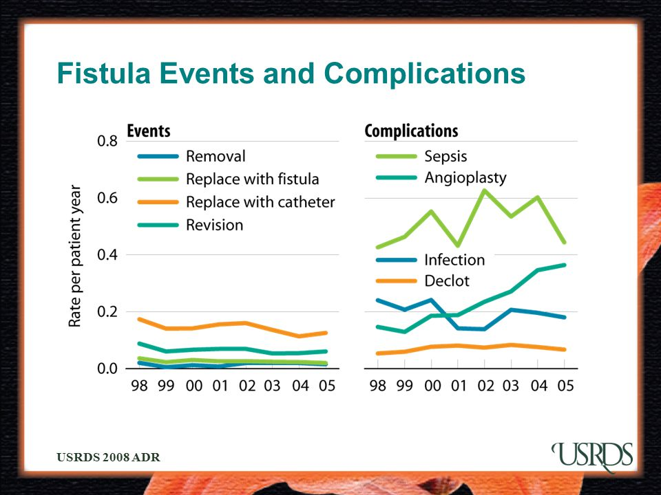 Fistula Events and Complications