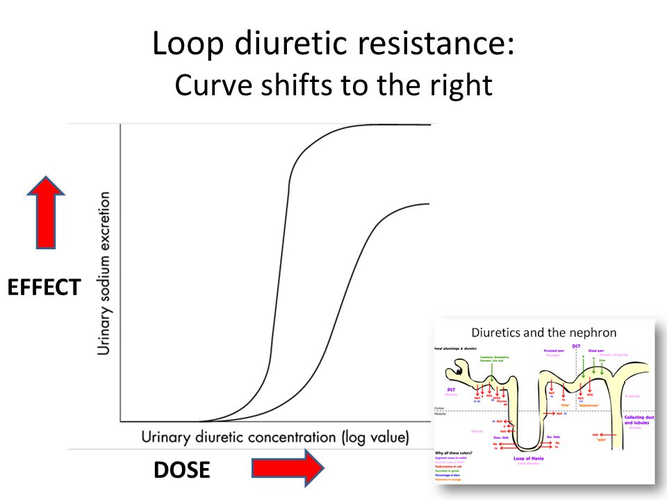 Loop diuretic resistance: Curve shifts to the right