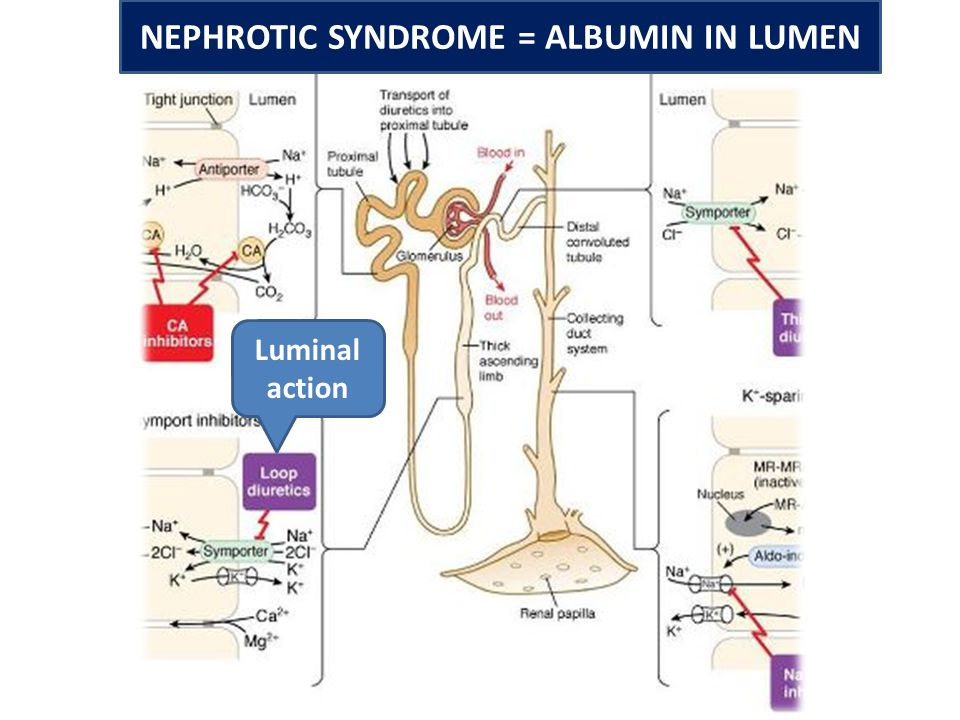 NEPHROTIC SYNDROME = ALBUMIN IN LUMEN