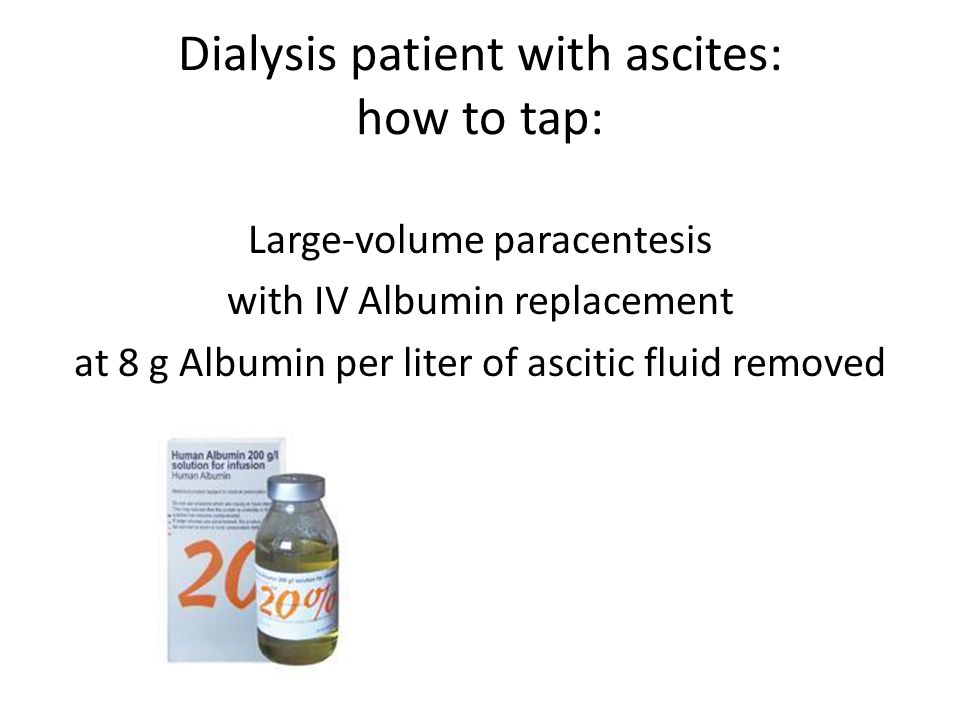 Dialysis patient with ascites: how to tap: