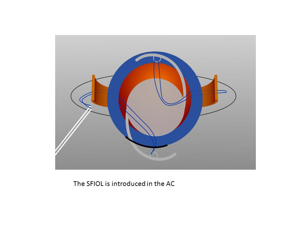The SFIOL is introduced in the AC