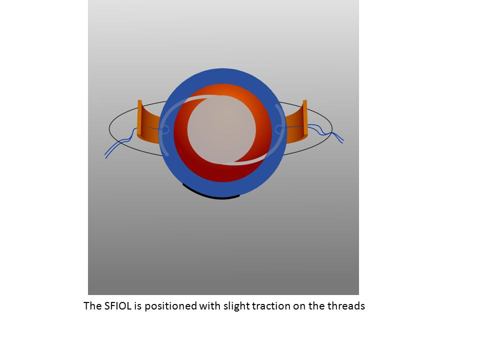 The SFIOL is positioned with slight traction on the threads