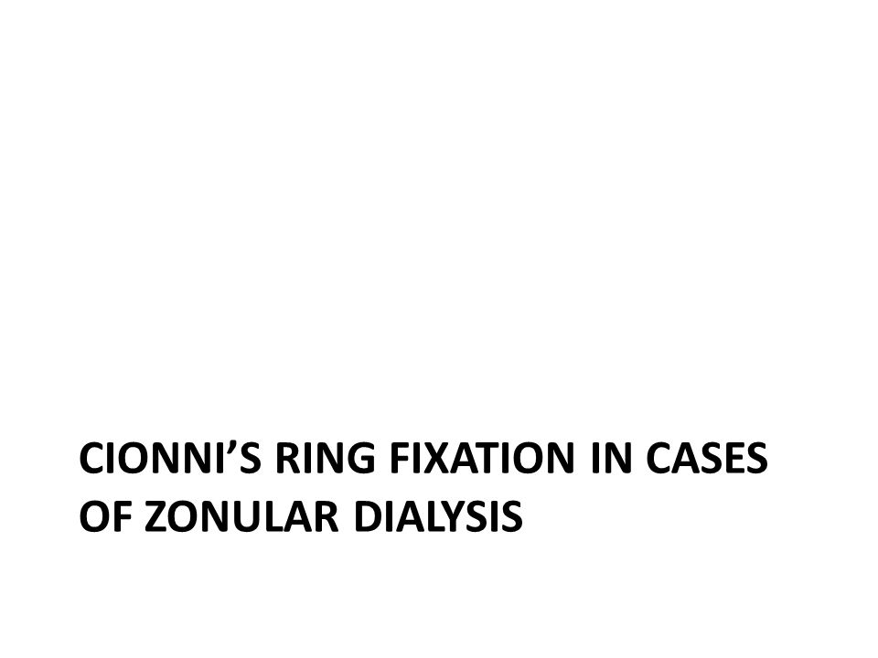 Cionni's ring fixation in cases of zonular dialysis
