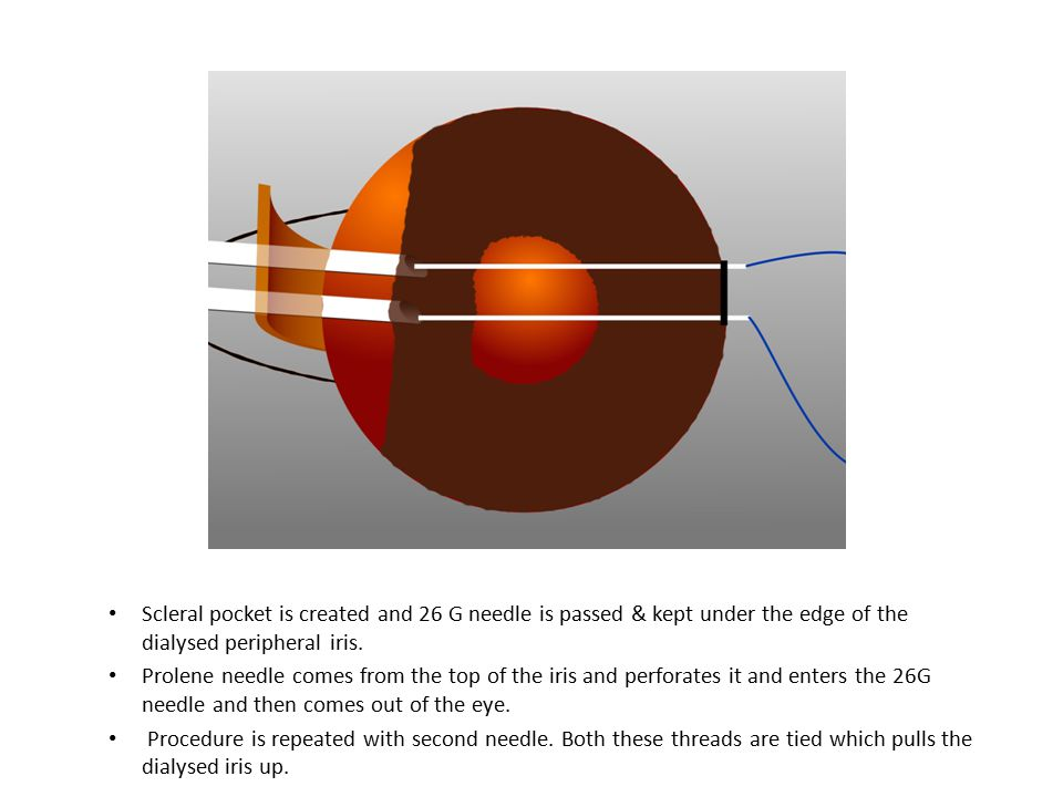 Scleral pocket is created and 26 G needle is passed & kept under the edge of the dialysed peripheral iris.