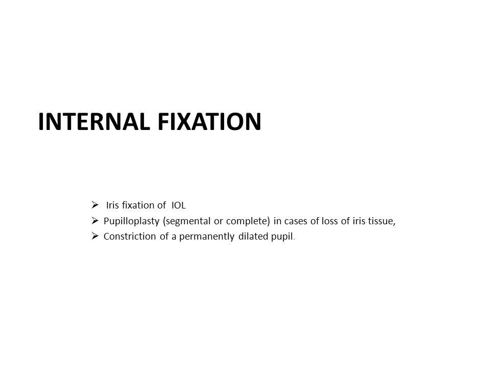 Internal fixation Iris fixation of IOL