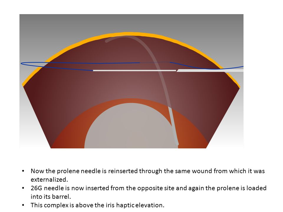 Now the prolene needle is reinserted through the same wound from which it was externalized.