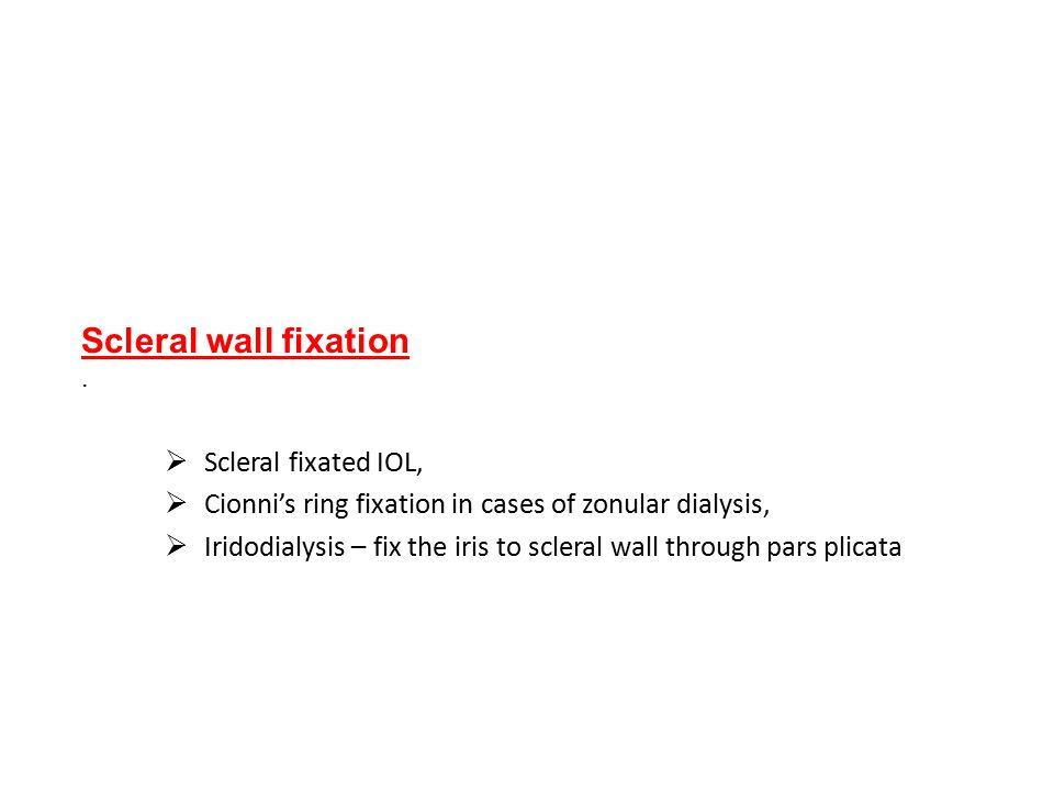 Cionni's ring fixation in cases of zonular dialysis,