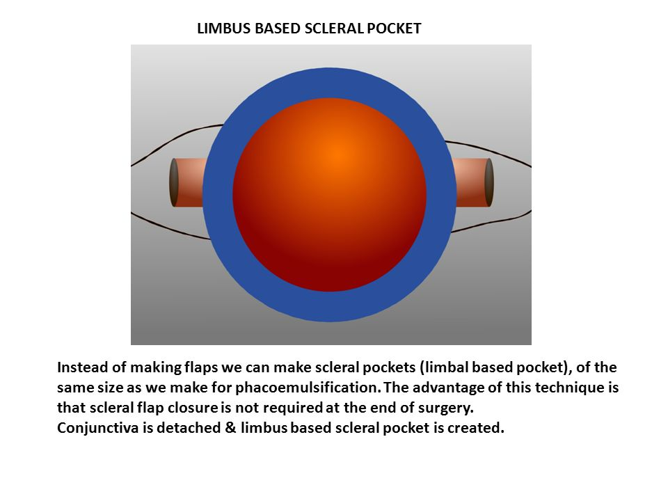 LIMBUS BASED SCLERAL POCKET