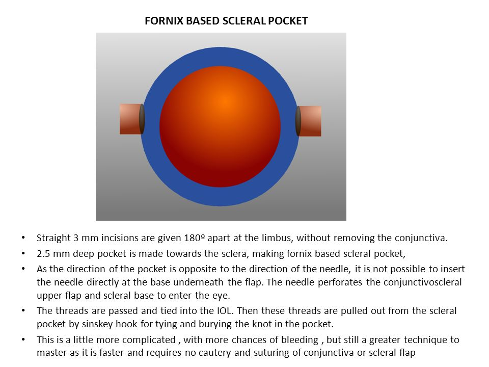 FORNIX BASED SCLERAL POCKET