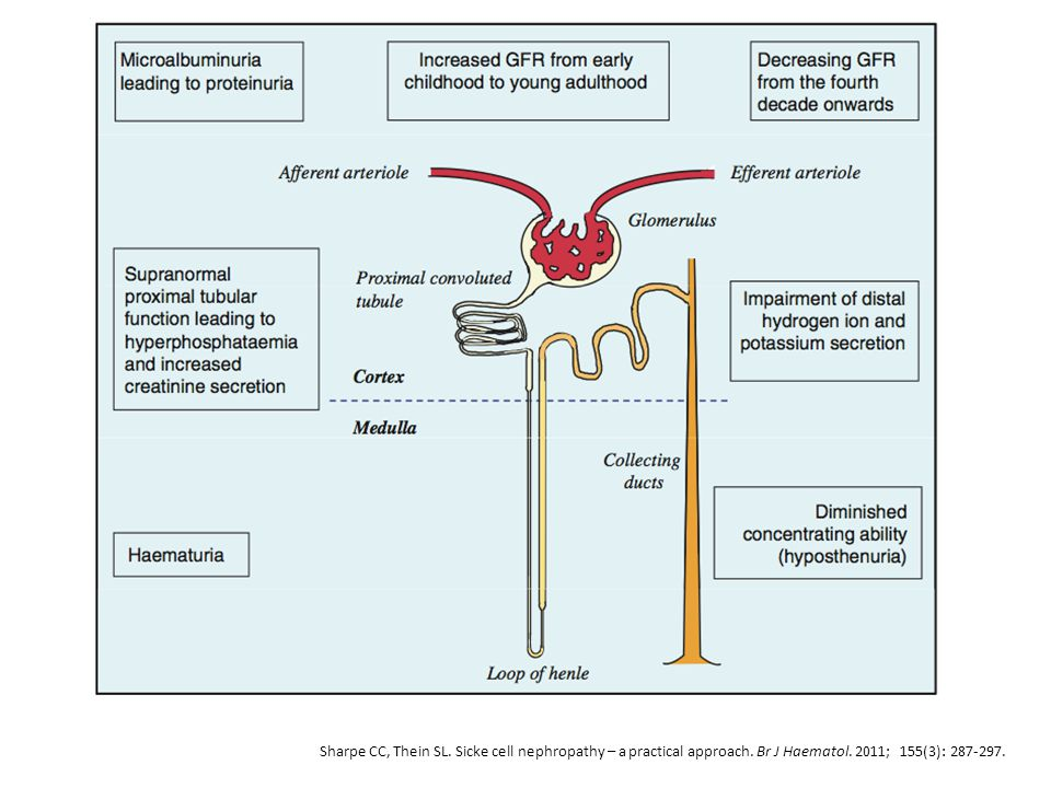 A representation of the renal nephron demonstrating the regions damaged in sickle cell disease leading to the clinical manifestations of sickle cell nephropathy