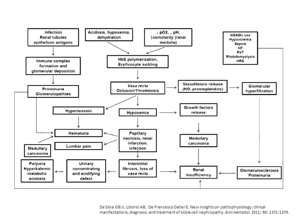 Pathophysiology of sickle cell nephropathy