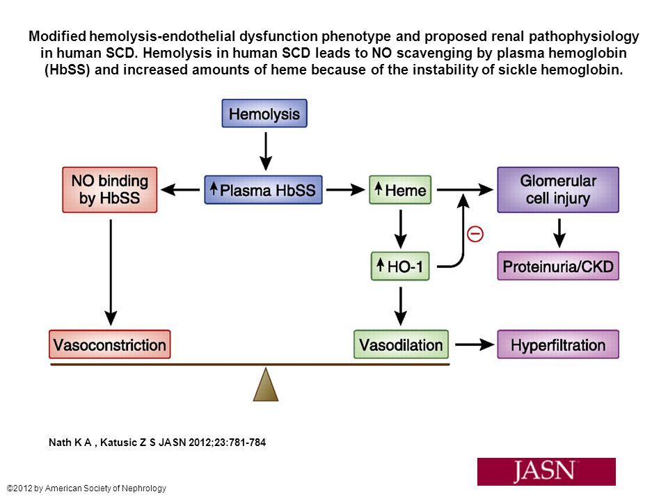 Modified hemolysis-endothelial dysfunction phenotype and proposed renal pathophysiology in human SCD. Hemolysis in human SCD leads to NO scavenging by plasma hemoglobin (HbSS) and increased amounts of heme because of the instability of sickle hemoglobin.