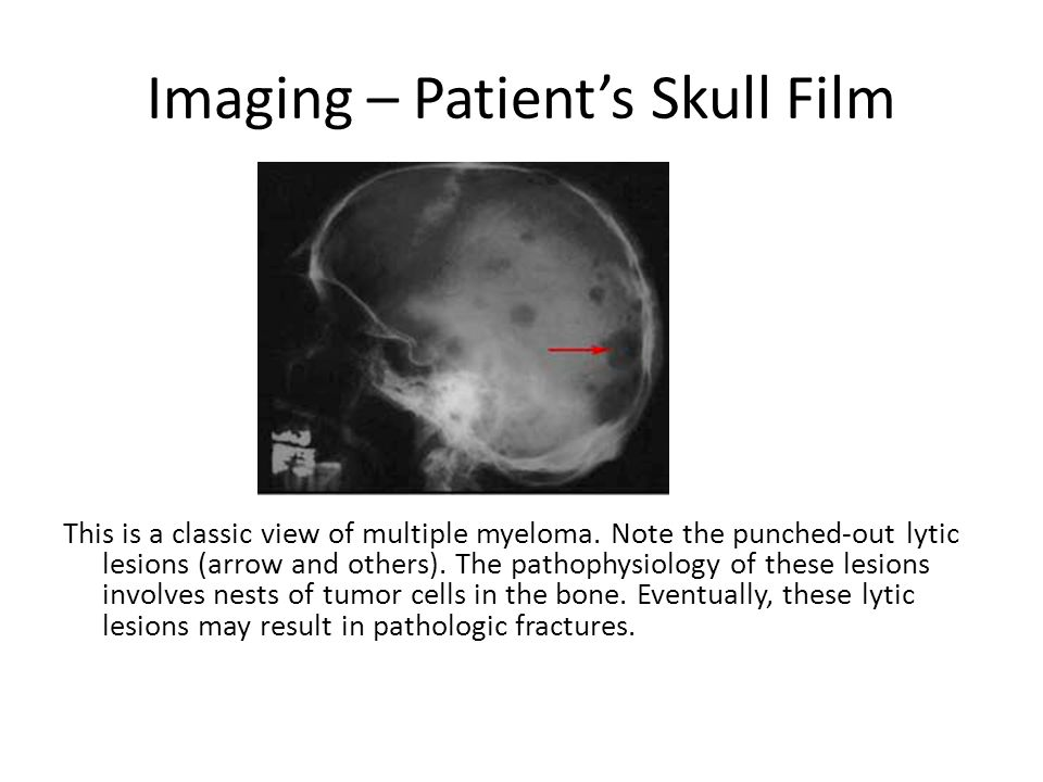 Imaging – Patient's Skull Film
