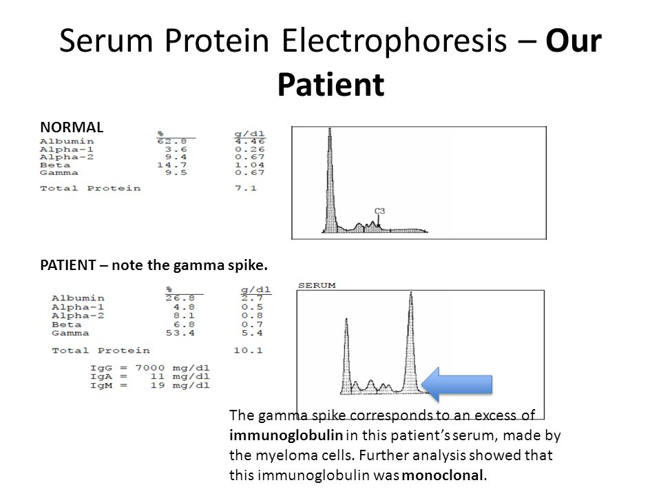 Serum Protein Electrophoresis – Our Patient