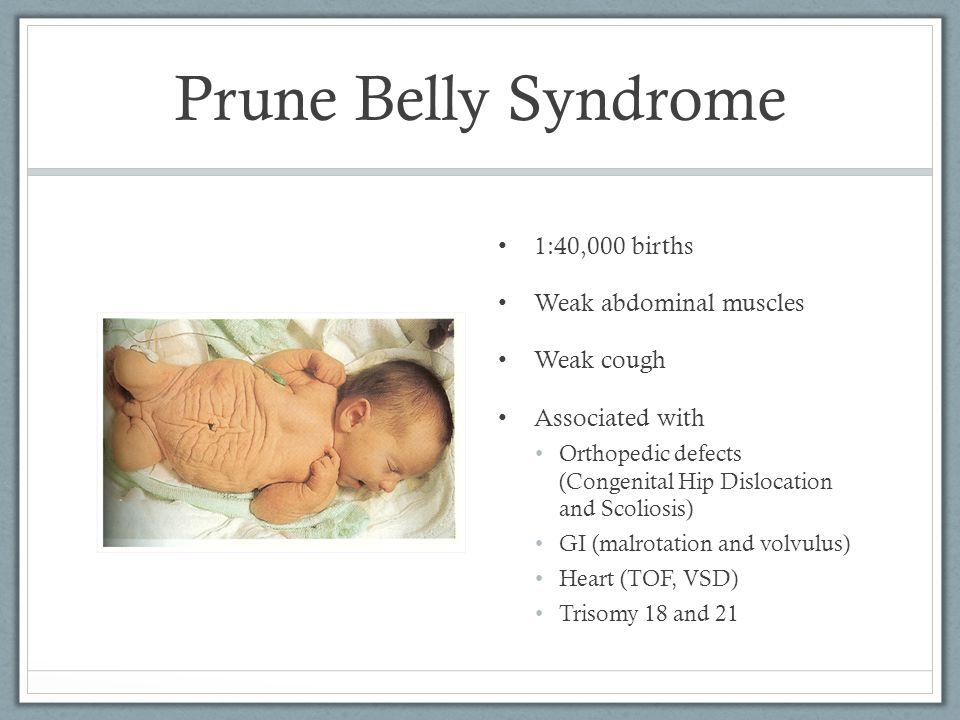 Prune Belly Syndrome 1:40,000 births Weak abdominal muscles Weak cough