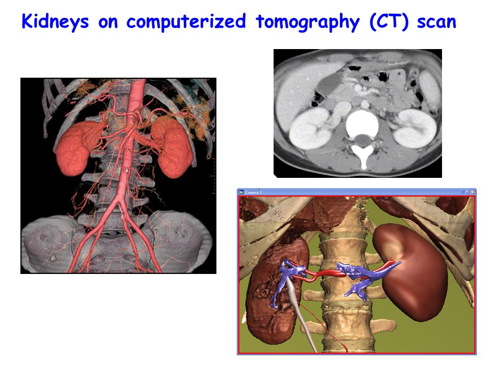 Kidneys on computerized tomography (CT) scan