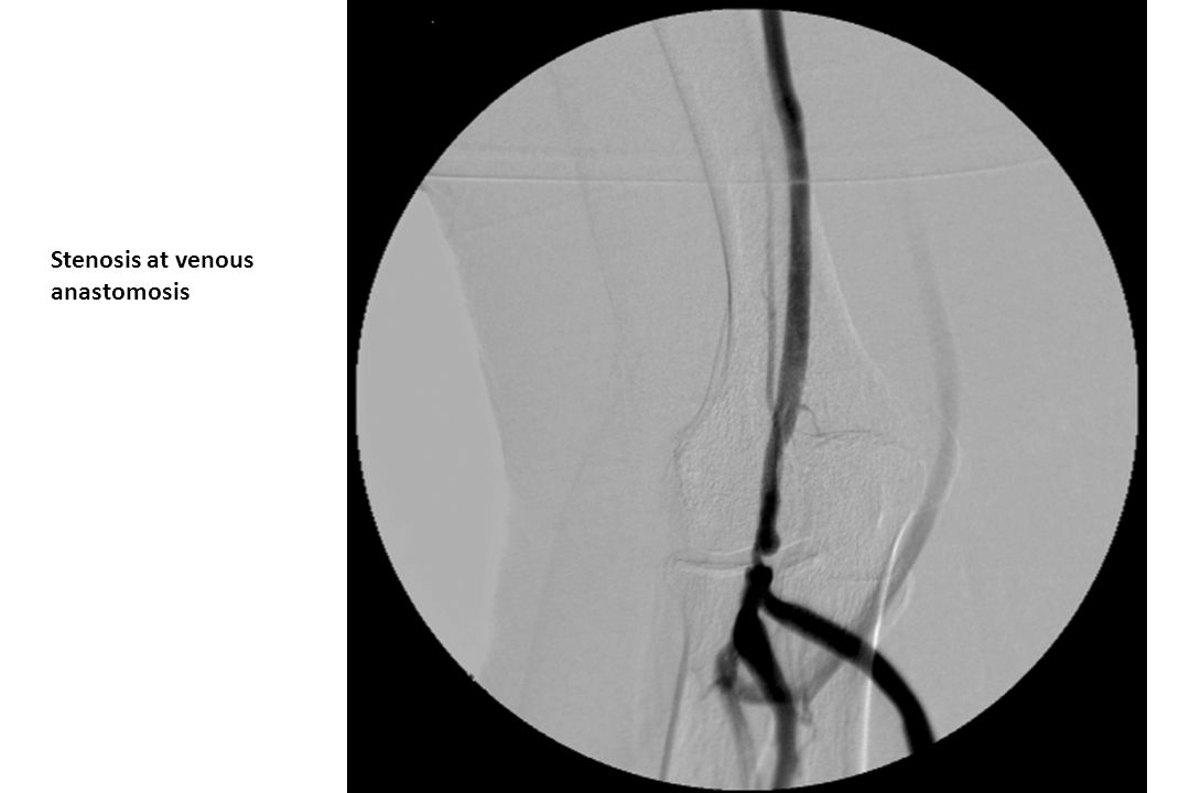 Stenosis at venous anastomosis