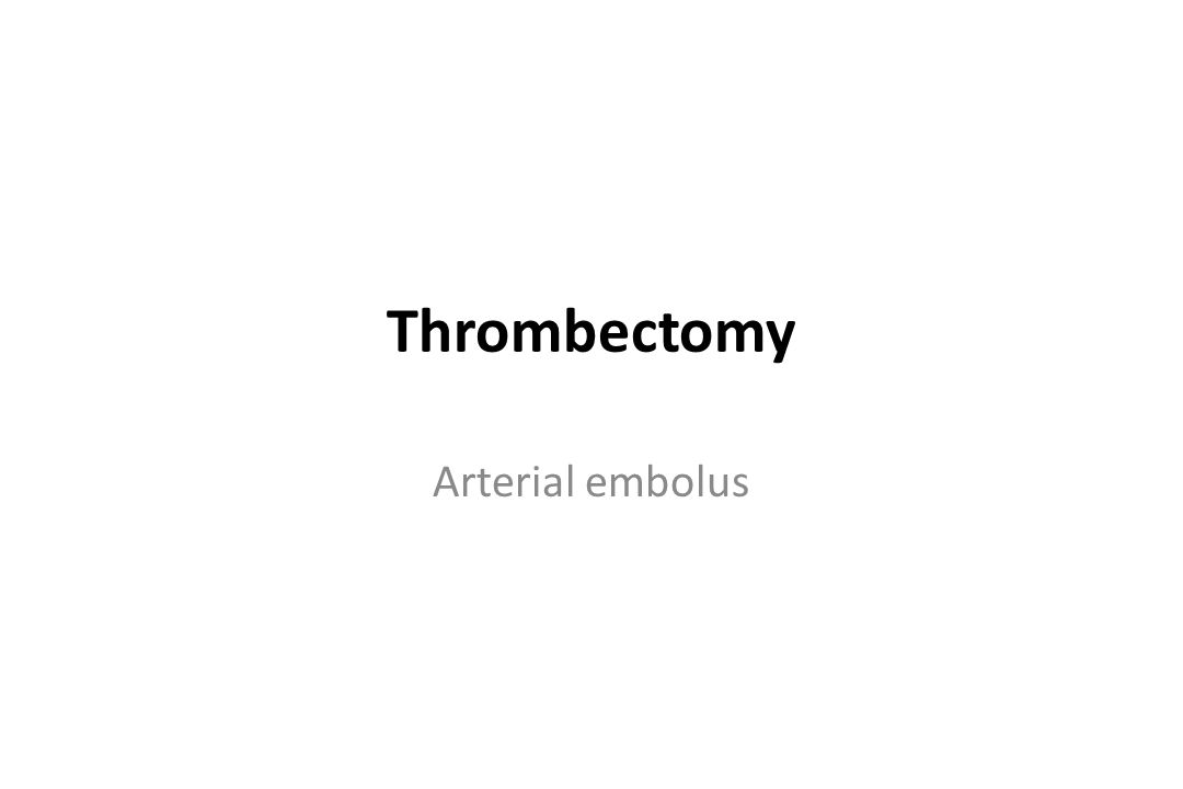Thrombectomy Arterial embolus