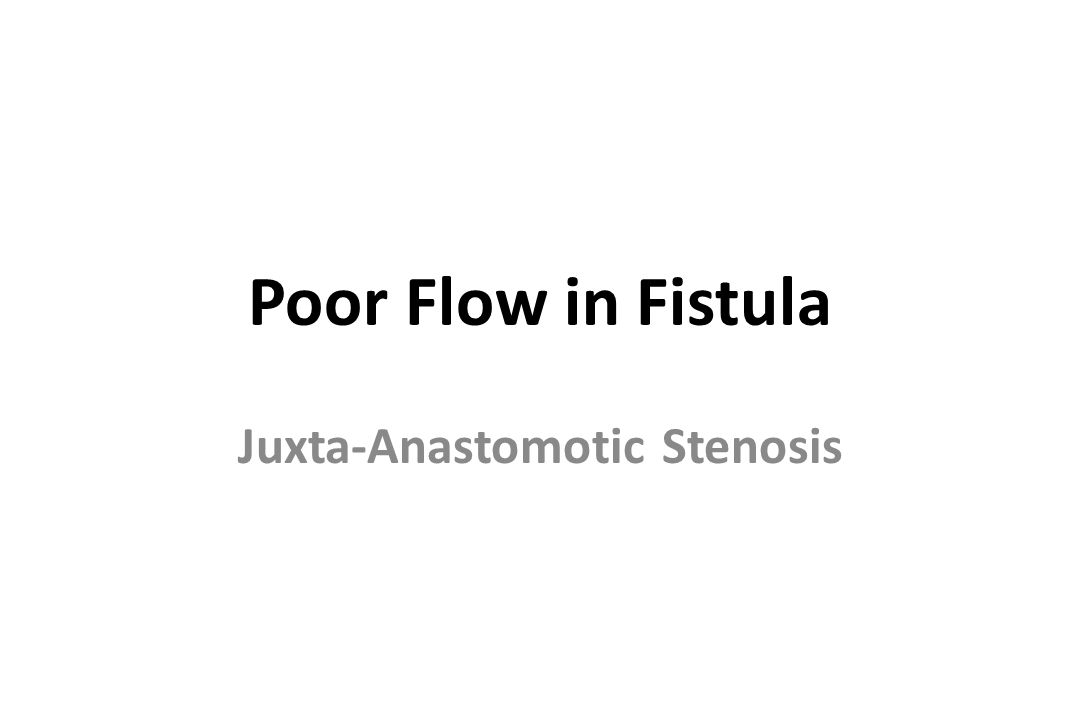 Juxta-Anastomotic Stenosis