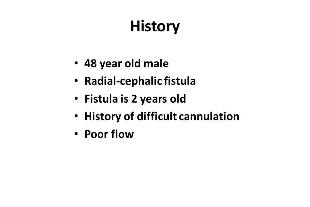 History 48 year old male Radial-cephalic fistula