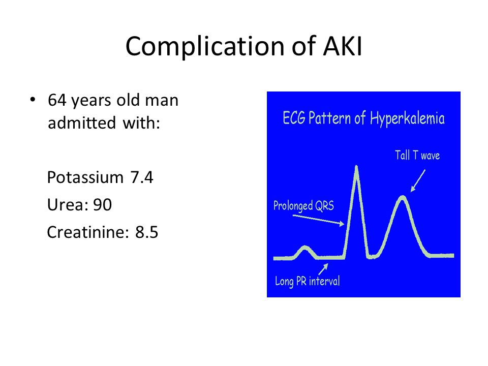Complication of AKI 64 years old man admitted with: Potassium 7.4