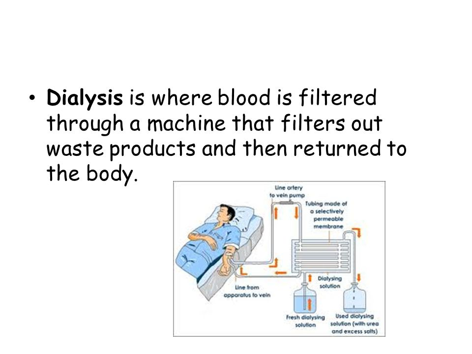 Dialysis is where blood is filtered through a machine that filters out waste products and then returned to the body.