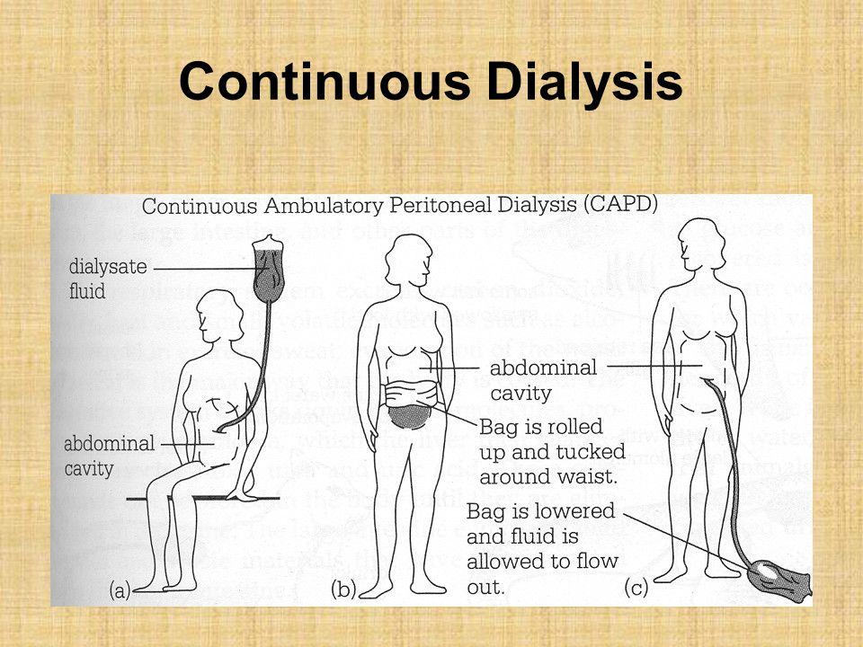 Continuous Dialysis