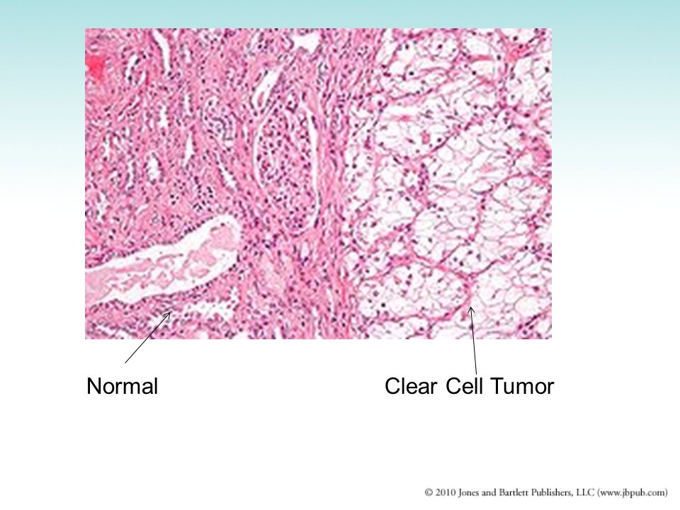 Normal Clear Cell Tumor