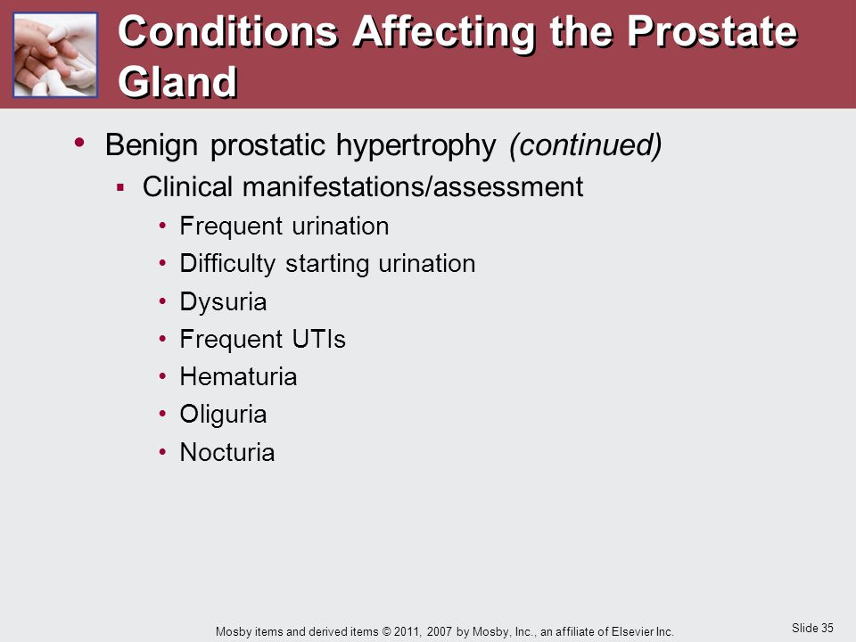 Conditions Affecting the Prostate Gland