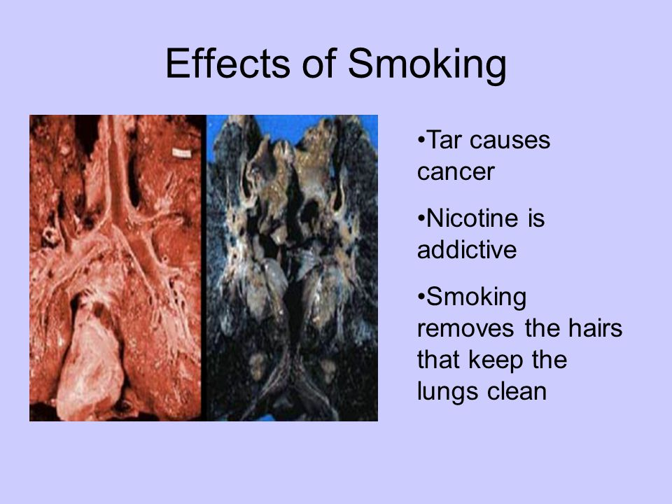 Effects of Smoking Tar causes cancer Nicotine is addictive