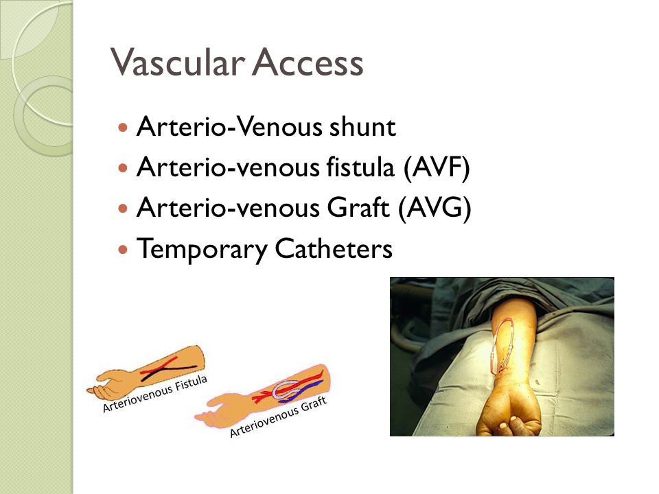 Vascular Access Arterio-Venous shunt Arterio-venous fistula (AVF)