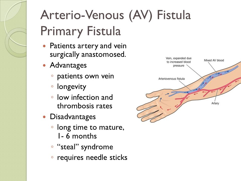 Arterio-Venous (AV) Fistula Primary Fistula