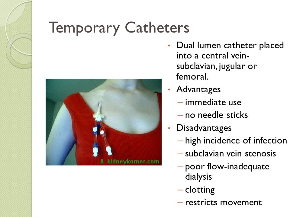 Temporary Catheters Dual lumen catheter placed into a central vein- subclavian, jugular or femoral.