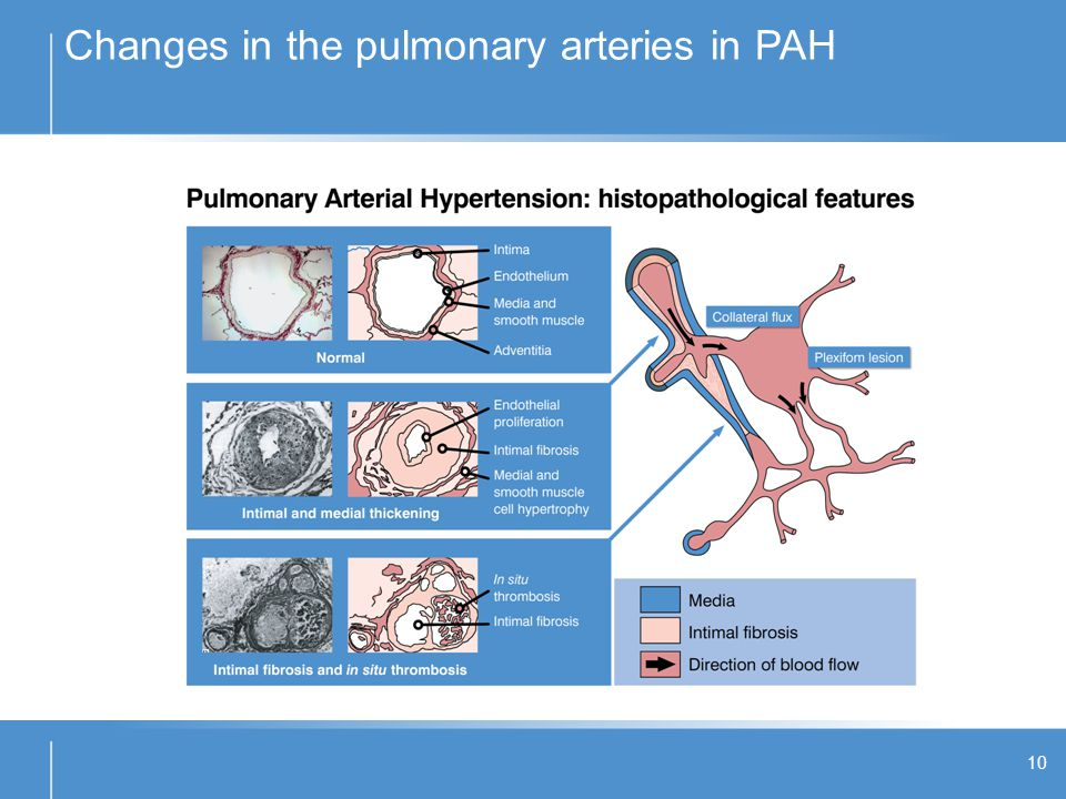 Changes in the pulmonary arteries in PAH
