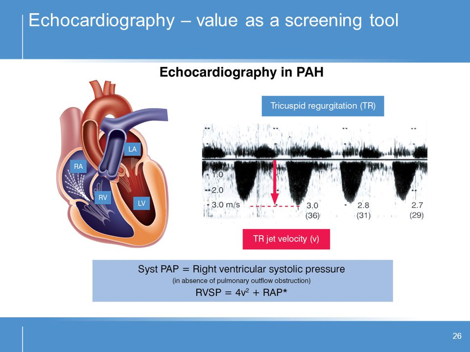 Echocardiography – value as a screening tool