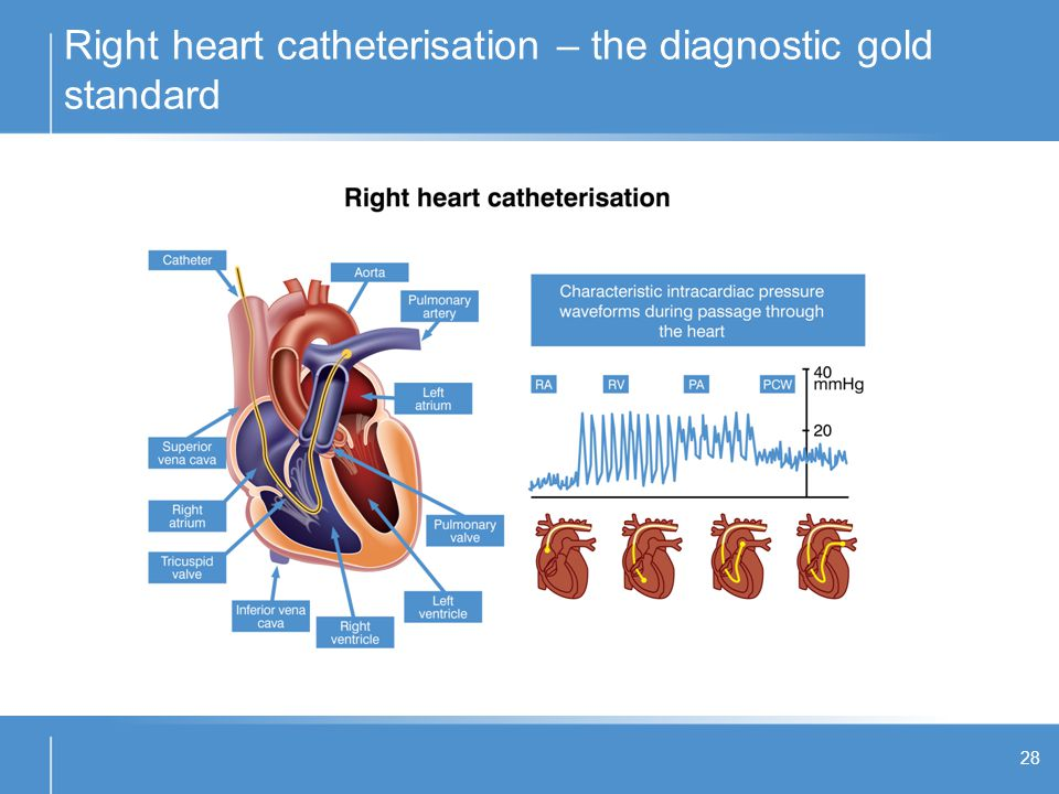 Right heart catheterisation – the diagnostic gold standard