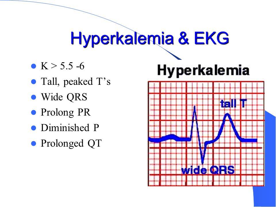 Hyperkalemia & EKG K > 5.5 -6 Tall, peaked T's Wide QRS Prolong PR