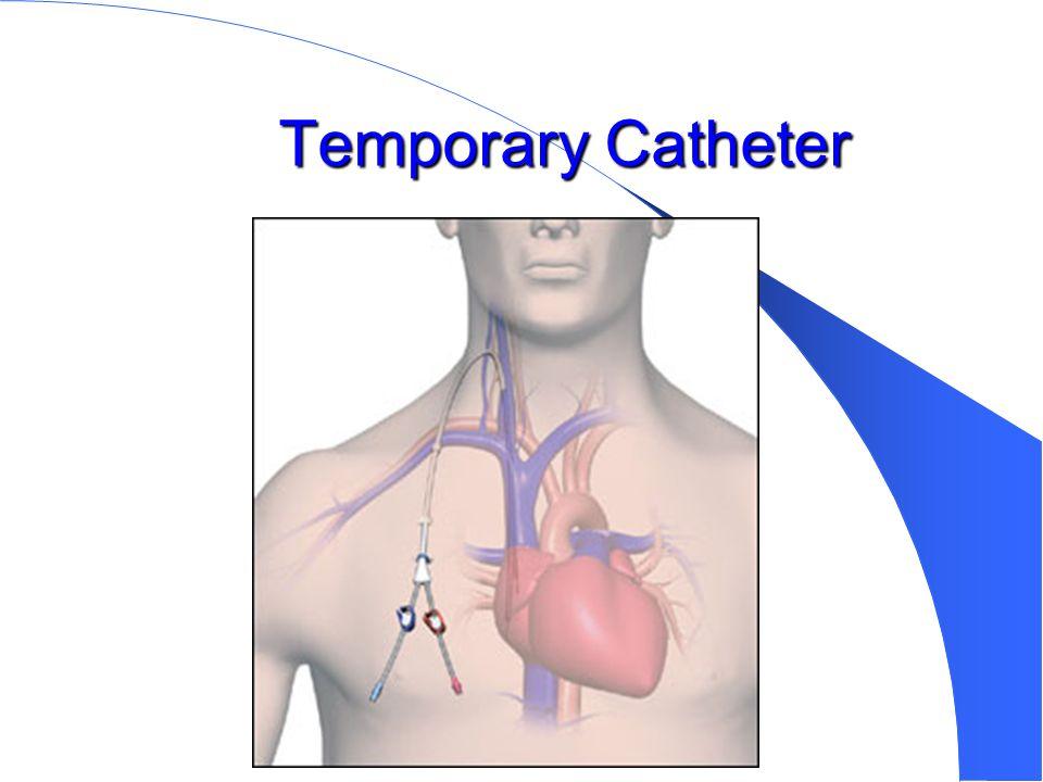 Temporary Catheter