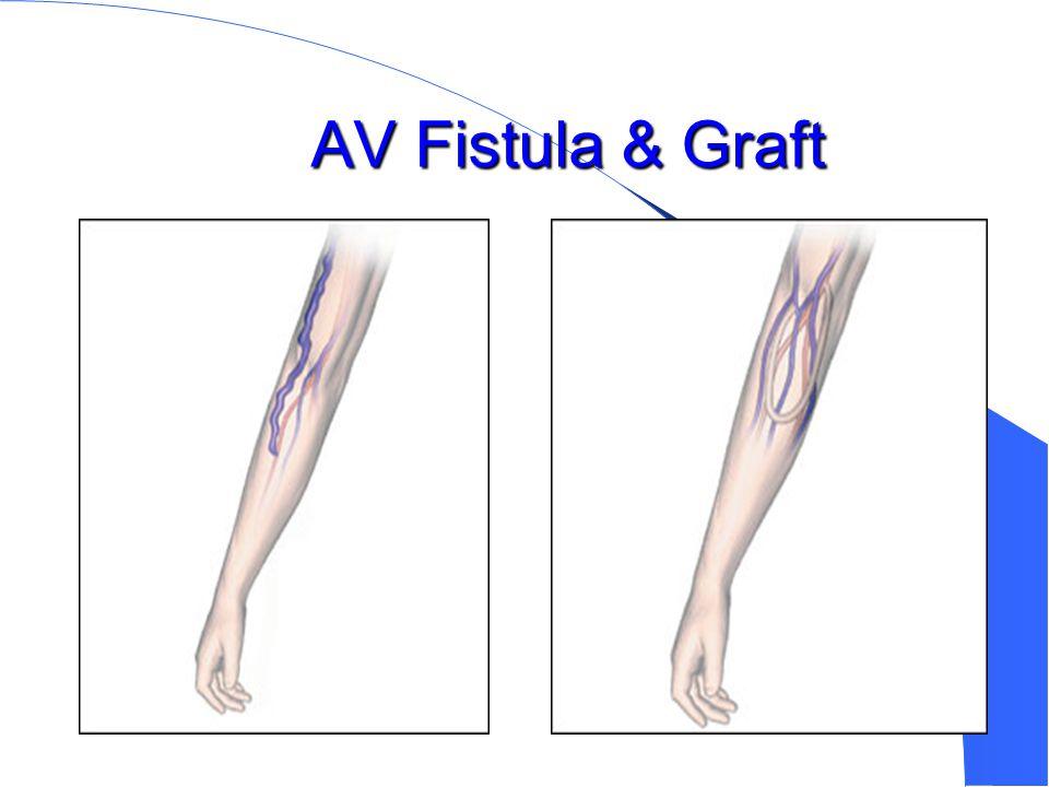 AV Fistula & Graft