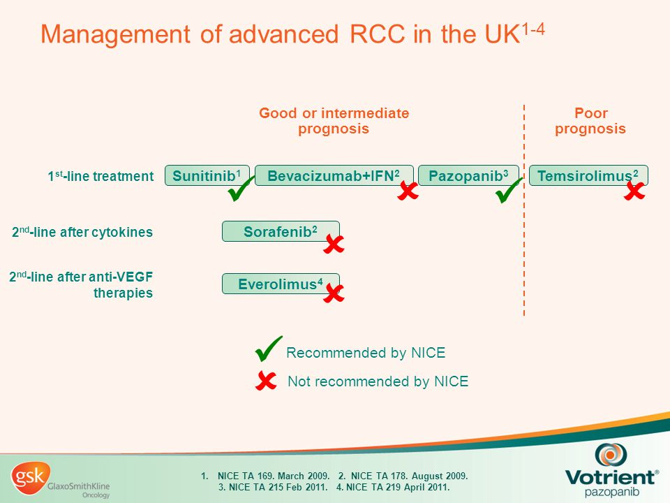 Management of advanced RCC in the UK1-4