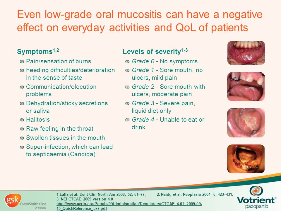 Even low-grade oral mucositis can have a negative effect on everyday activities and QoL of patients