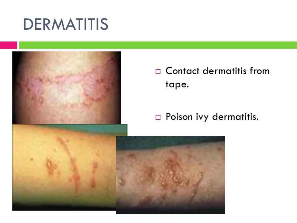 DERMATITIS Contact dermatitis from tape. Poison ivy dermatitis.