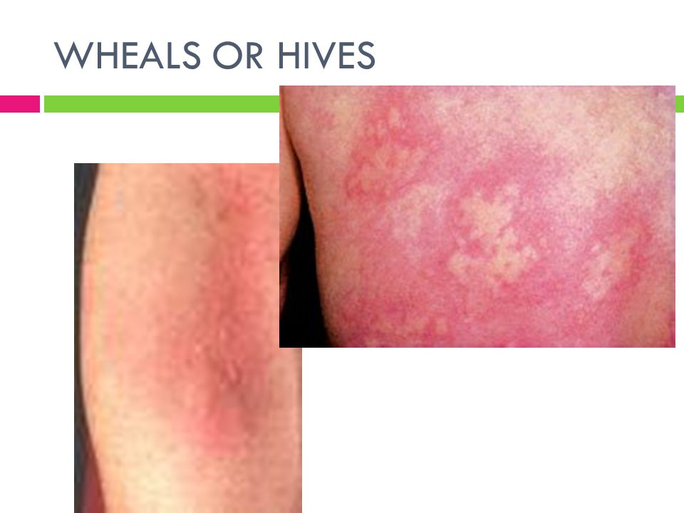 WHEALS OR HIVES