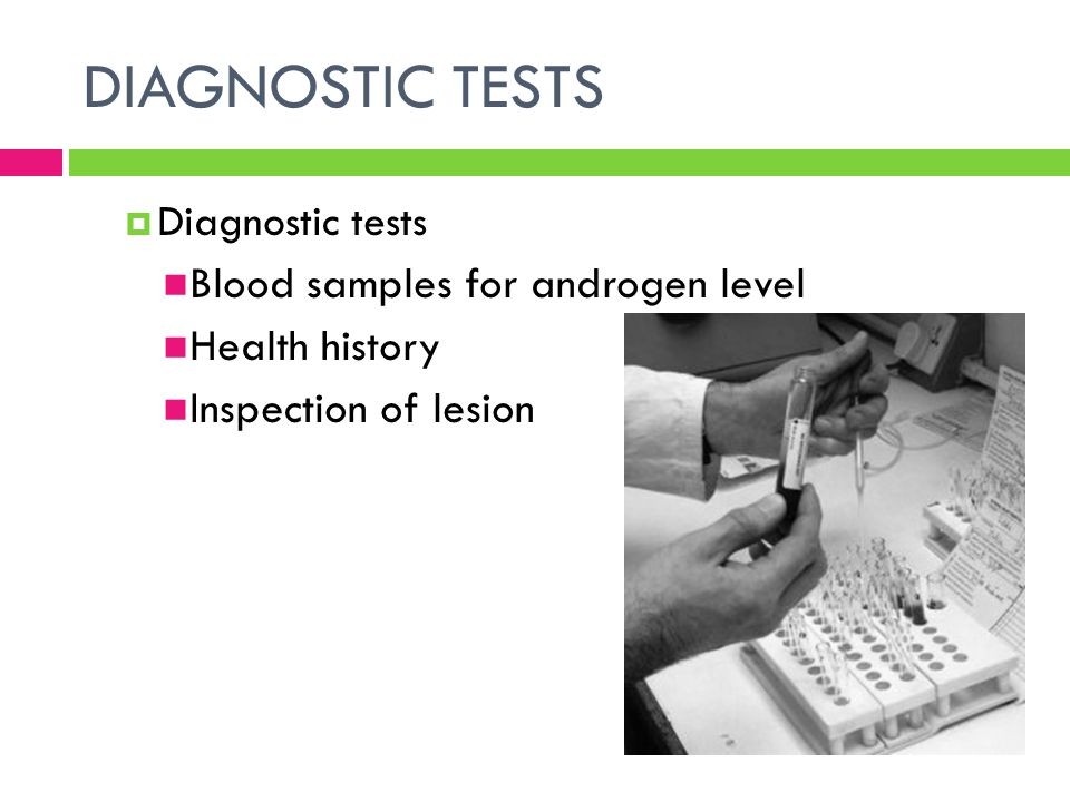 DIAGNOSTIC TESTS Blood samples for androgen level Health history