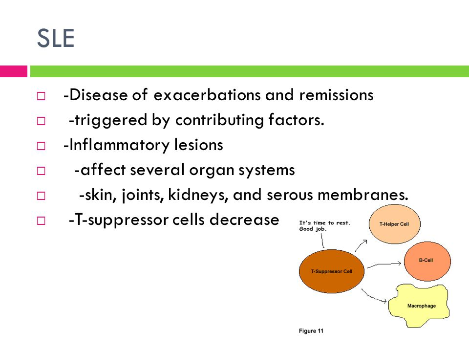 SLE -Disease of exacerbations and remissions