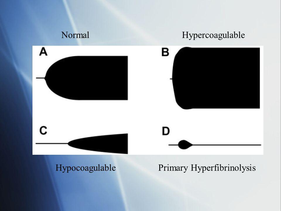 Normal Hypercoagulable Hypocoagulable Primary Hyperfibrinolysis