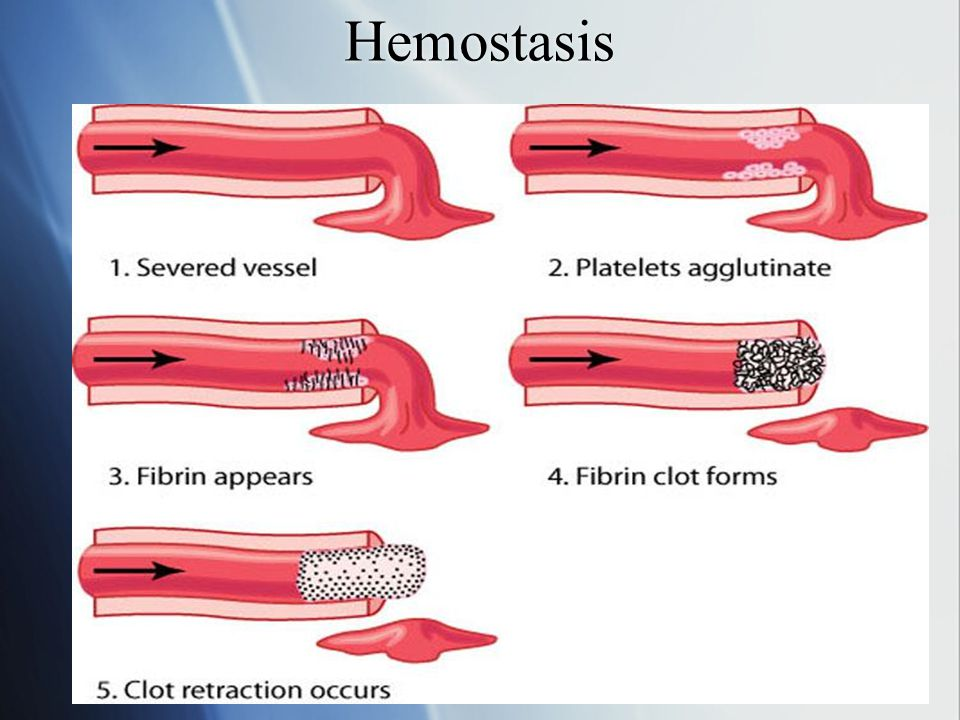 Hemostasis 2.Activation of PLTs