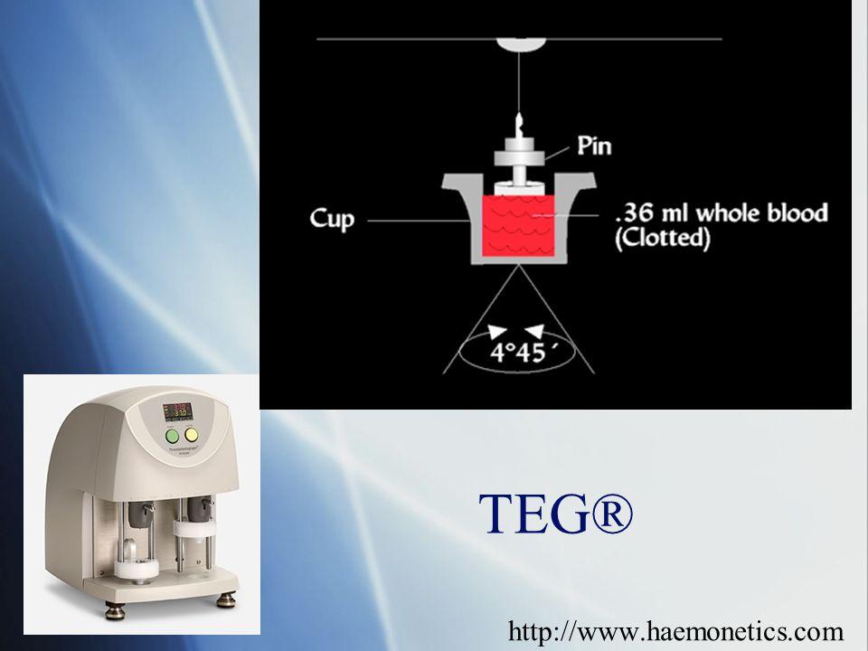 TEG® http://www.haemonetics.com