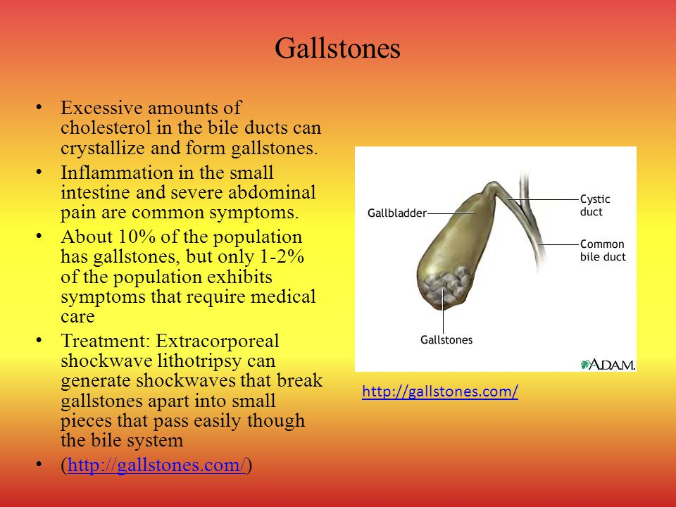 Gallstones Excessive amounts of cholesterol in the bile ducts can crystallize and form gallstones.