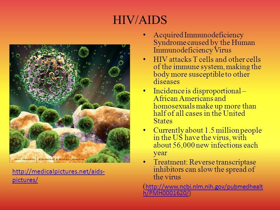 HIV/AIDS Acquired Immunodeficiency Syndrome caused by the Human Immunodeficiency Virus.